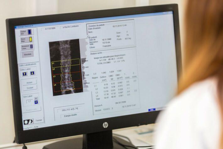 Rhumatologie Consultation Osteodensitometrie